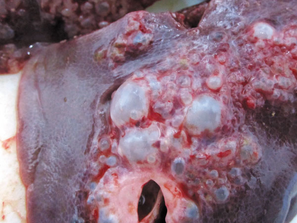Туберкулез легких — это не просто «Фу!»