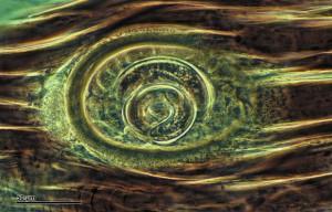 Это не современная живопись, а личинка трихинеллы